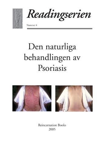 Bild på Den naturliga behandlingen av psoriasis